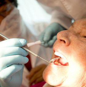 Cómo cuidar los dientes - Artritis