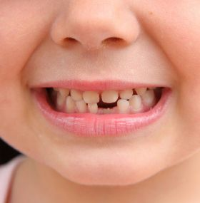 Cómo cuidar los dientes - Niños