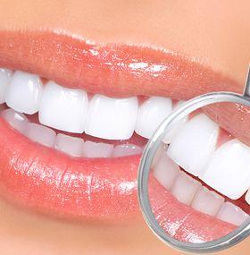 ¿Cómo cuidar los dientes?