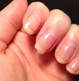 Cómo cuidar las uñas - Envejecimiento